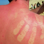 Autsch! Das hilft wenn Kinder Sonnenbrand haben