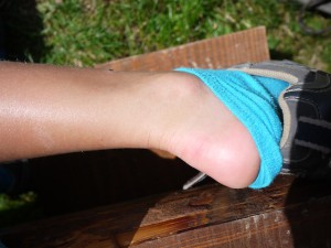 Blasen an den Füßen! Lasst sie am besten erst gar nicht entstehen. Foto (c) kinderoutdoor.de